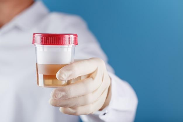 O médico está segurando uma lata de plástico com urina para análise. Foto Premium