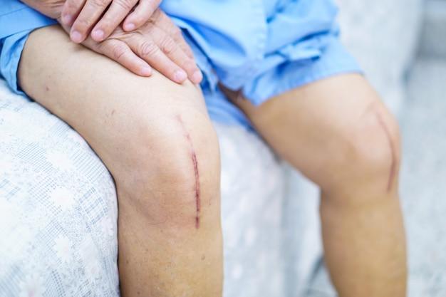 O paciente sênior idoso da mulher adulta da senhora mostra-lhe a substituição total cirúrgica da articulação do joelho das cicatrizes. Foto Premium