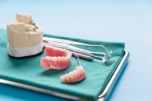 O trabalho de implante dentário está concluído e pronto para uso. Foto Premium