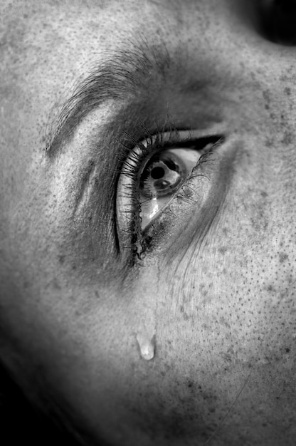 Olho chorando Foto Premium