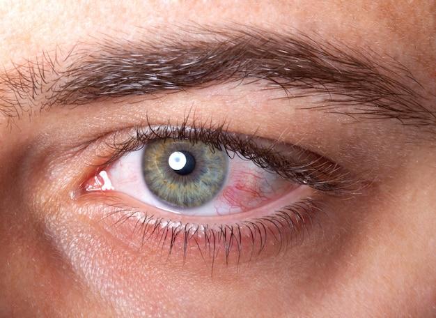 Olho injetado vermelho irritado Foto Premium