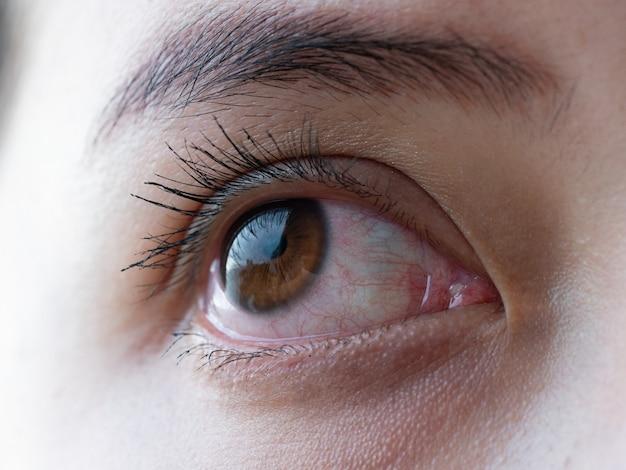 Olho vermelho de mulher, olhos de conjuntivite ou depois de chorar Foto Premium