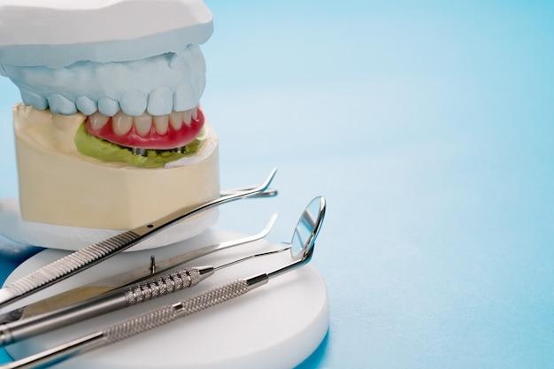 Os implantes dentários suportaram a overdenture no fundo azul. Foto Premium