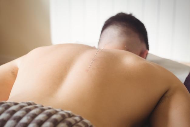 Paciente com agulhamento seco nas costas Foto gratuita