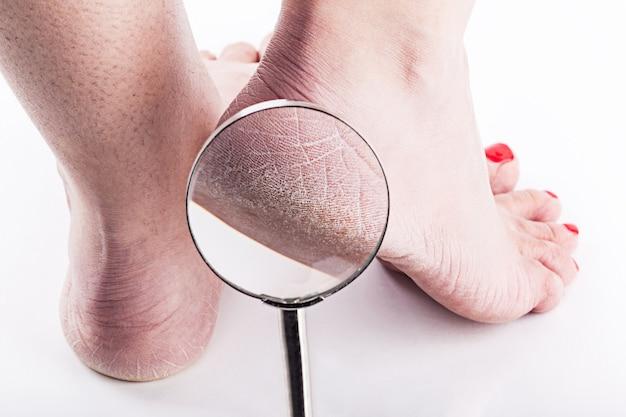 Pele desidratada nos calcanhares de pés femininos Foto Premium