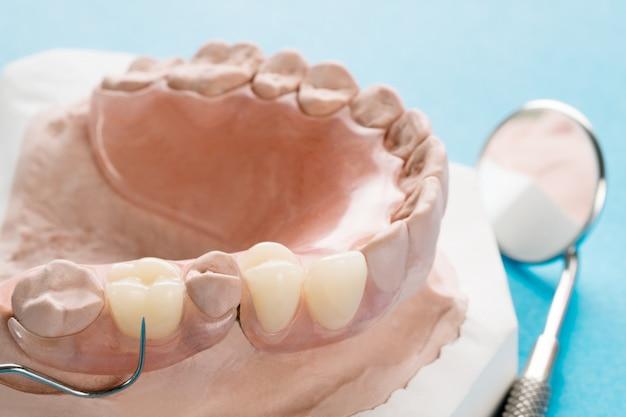 Prótese parcial removível artificial ou prótese parcial temporária Foto Premium