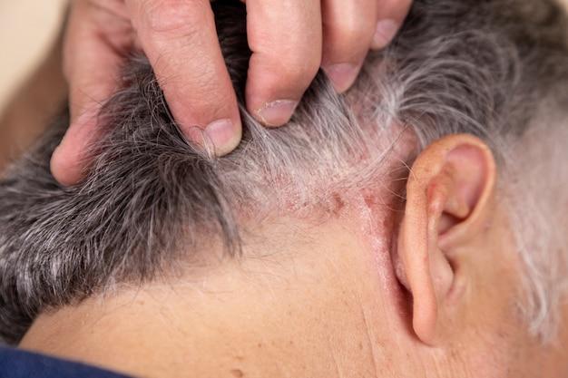 Psoríase vulgar, doença psoriásica da pele no cabelo Foto Premium