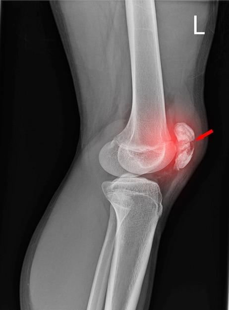 Radiografia da articulação do joelho Foto Premium