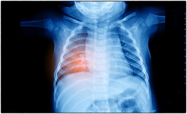 Radiografia de tórax de um paciente que mostra câncer de pulmão primário no lobo direito e esquerdo do pulmão. fundo escuro com destaque vermelho foco no tumor. Foto Premium