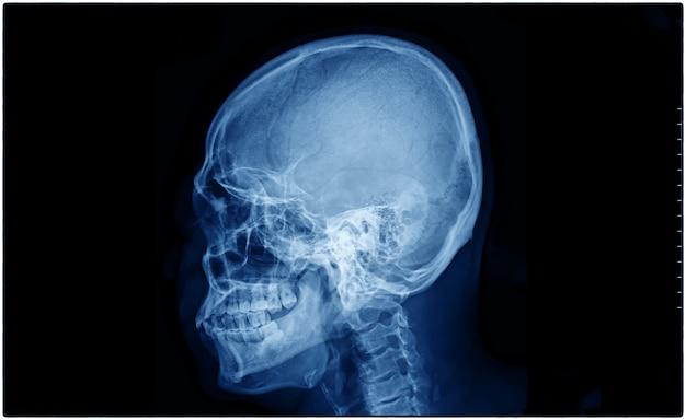 Radiografia do crânio de um paciente Foto Premium