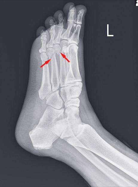 Radiografia do pé e tornozelo mostrando fraturas do metatarso. Foto Premium