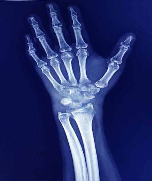 Radiografia do punho mostrando artrite grave do pulso ou deformidade do polegar e do polegar. Foto Premium