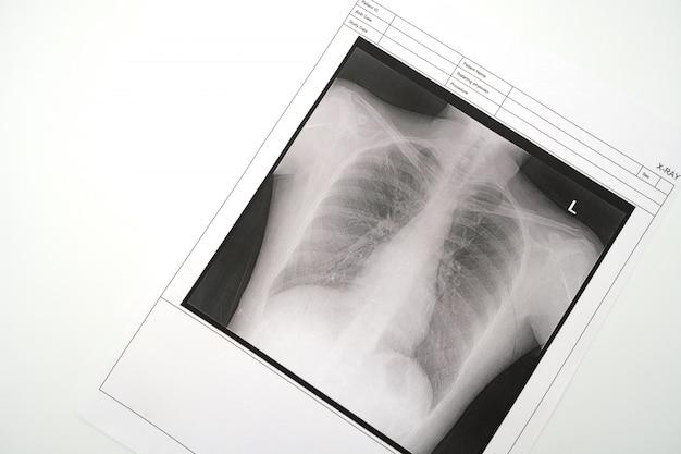 Radiografia pulmonar Foto Premium