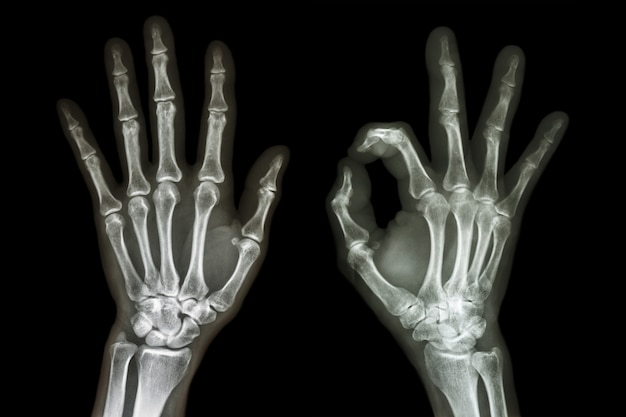 Raio x ambas as mãos com sinal de ok Foto Premium