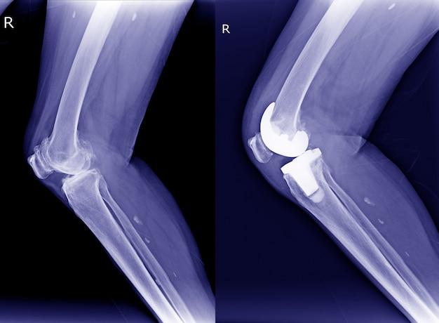 Raio x direita osteoartrite do joelho (oa) e pós-operatório artroplastia total do joelho (atj) vi Foto Premium