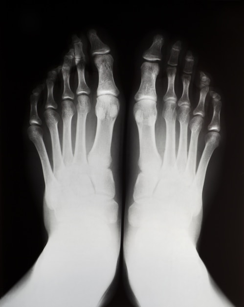 Raio-x dos pés esquerdo e direito. Foto Premium