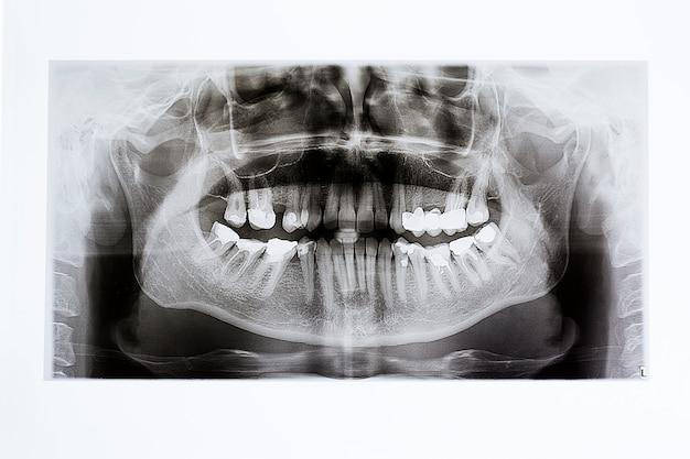Raios-x da mandíbula e dentes Foto Premium