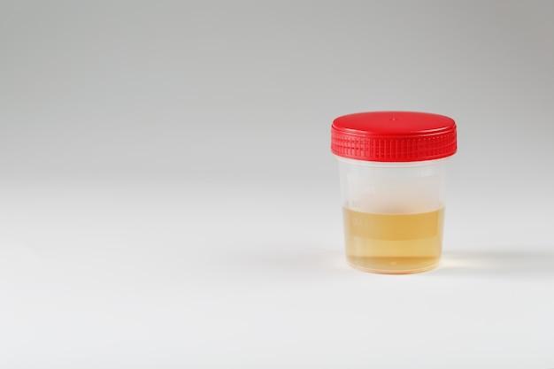 Recipiente com exames médicos de urina Foto Premium