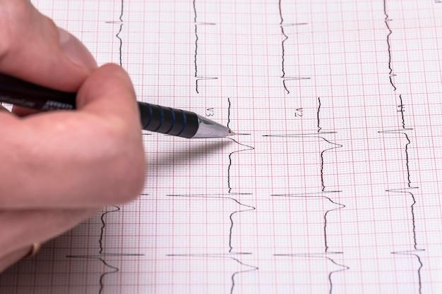 Relatório de gráfico de papel de ecg, eletrocardiograma em papel como plano de fundo Foto Premium