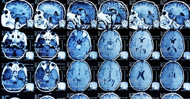 Ressonância magnética de um paciente com um tumor no tronco cerebral. Foto Premium