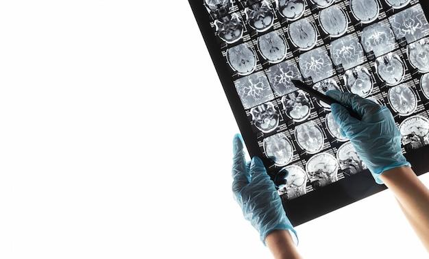Ressonância magnética ressonância magnética do cérebro. Foto Premium