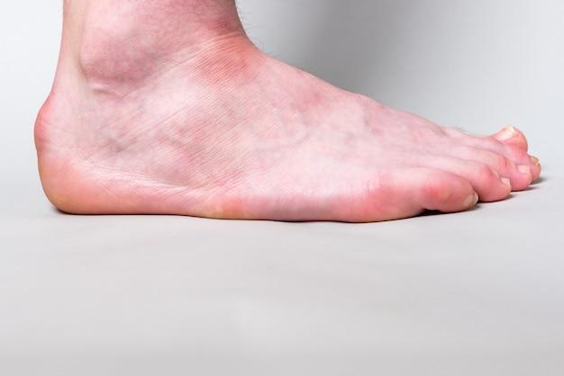 Saliência na parte de trás do osso do calcanhar chamada de deformidade de haglund na parede cinza. Foto Premium