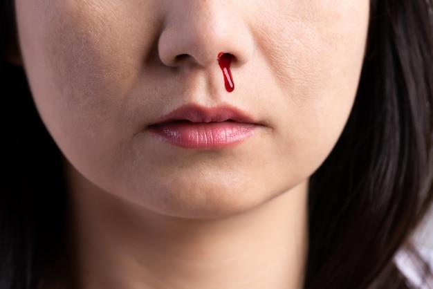Sangramento nasal, mulher com um nariz sangrando, conceito de saúde. Foto Premium