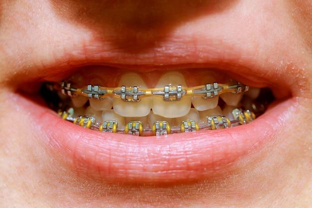 Tiro macro bonito dos dentes brancos com cintas. Foto Premium