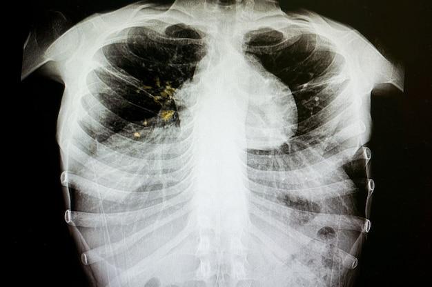Tuberculose pulmonar Foto Premium