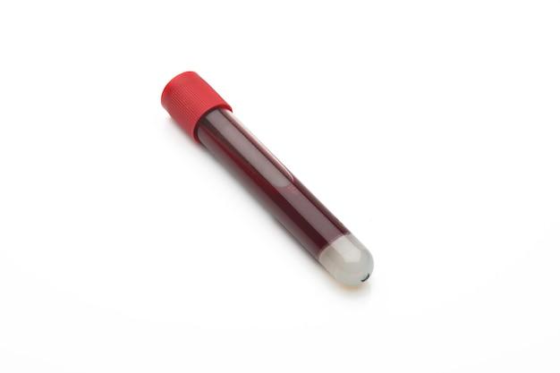 Tubo de ensaio com sangue para verificar falso positivo beta hCG