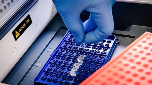 Um trabalhador de laboratório organizando as pontas da pipeta em um recipiente azul para um teste de coronavírus Foto gratuita