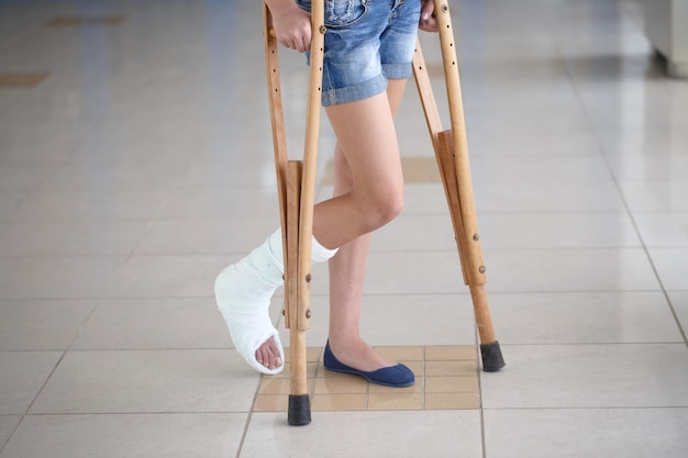 Uma jovem garota está de muletas no corredor do hospital. Foto Premium