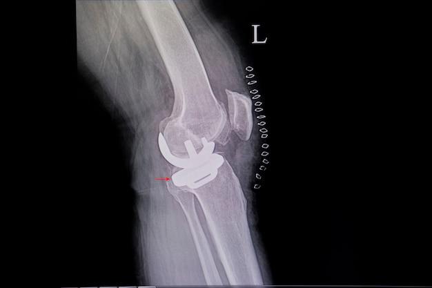Uma prótese de joelho Foto Premium