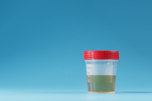 Urina em um recipiente de teste com tampa vermelha em azul Foto Premium