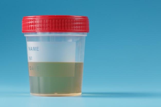Urinálise no frasco do banco isolado Foto Premium