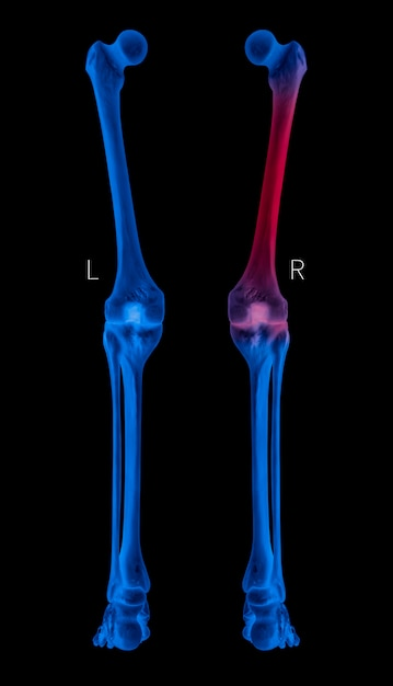 Vista posterior do osso da perna humana de raio-x com destaques vermelhos nas áreas de dor óssea do fêmur, cor de tom azul Foto Premium