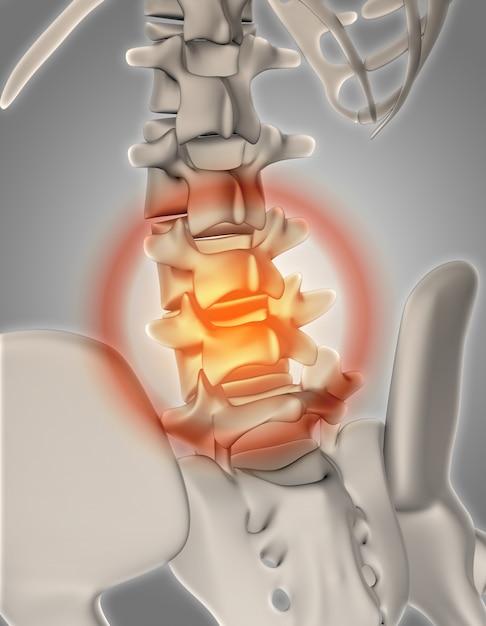 3D übertragen von einem Skelett mit hervorgehobenen Wirbelsäule ...