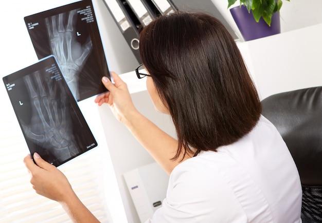 Ärztin betrachtet röntgenstrahl des handbruchs Kostenlose Fotos