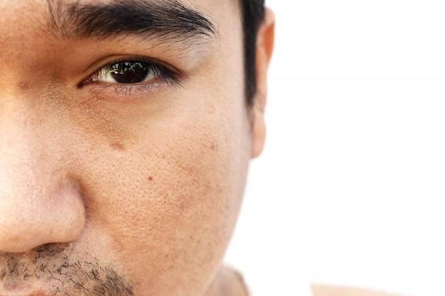 Asiatische gesichtshaut bekommt nach dem schlafen keinen augenzwinkern und kümmert sich lange nicht Premium Fotos