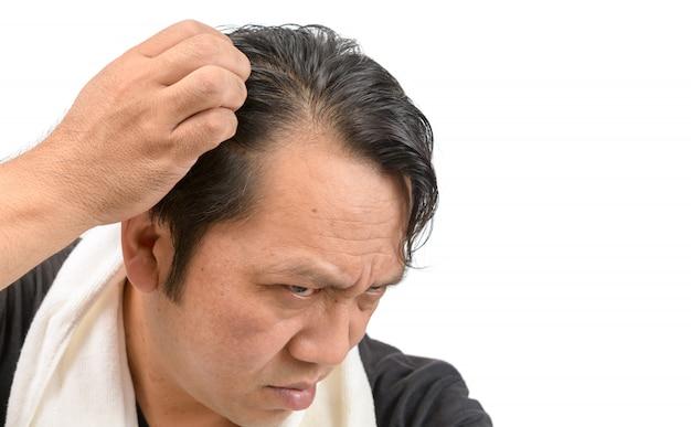 Asiatische mannsorge über seinen haarausfall oder alopezie lokalisiert Premium Fotos