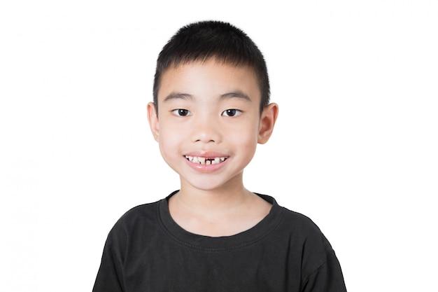 Asiatischer junge des lächelns mit dem gebrochenen zahn, daumen oben auf weißem hintergrund Premium Fotos