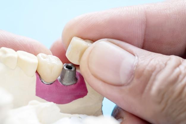 Ausrüstung für zahnkronen und zahnbrückenimplantate und modell-express-fix-restauration. Premium Fotos
