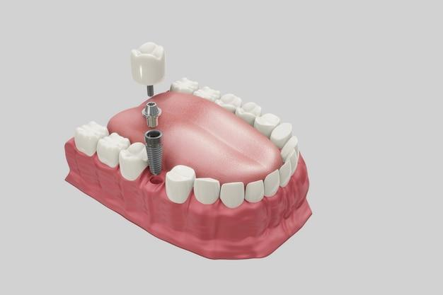 Behandlungsverfahren für zahnimplantate. medizinisch genaues 3d-illustrationsprothesenkonzept. Premium Fotos