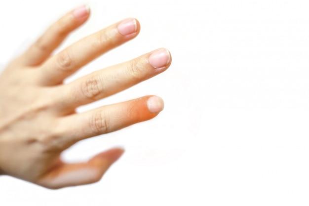 Close up junge schöne frau hat schmerzen in einem linken zeigefinger. Premium Fotos