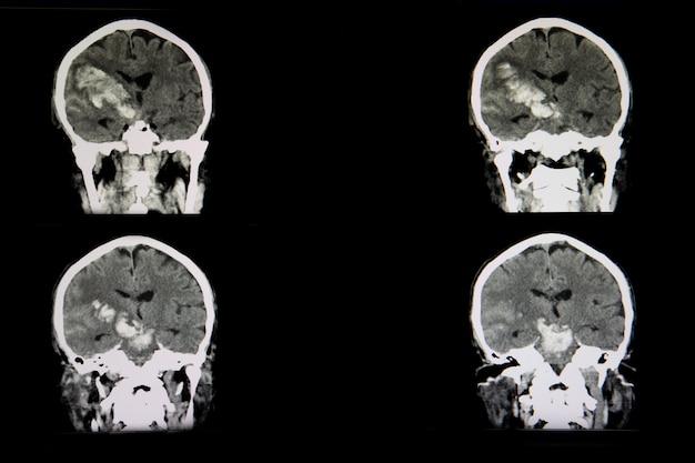 Ct-scan eines brian eines patienten mit akutem hämorrhagischem schlaganfall Premium Fotos