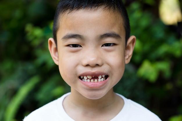 Der asiatische junge mit gebrochenem zahn im garten Premium Fotos