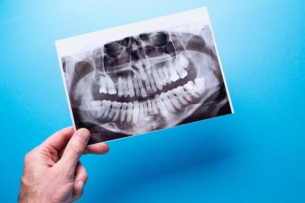 Ein zahnarzt, der eine momentaufnahme des zahns des patienten hält, zeigt das problem an. Premium Fotos