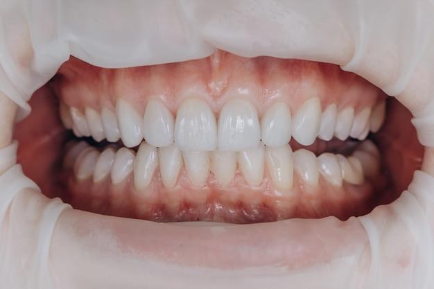 Fertige keramikfrontkronen. 8 einheiten dentalveneers. Premium Fotos