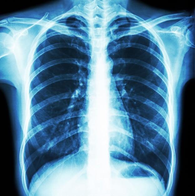 Filmbrust röntgenaufnahme der normalen menschlichen brust. vorderansicht . Premium Fotos