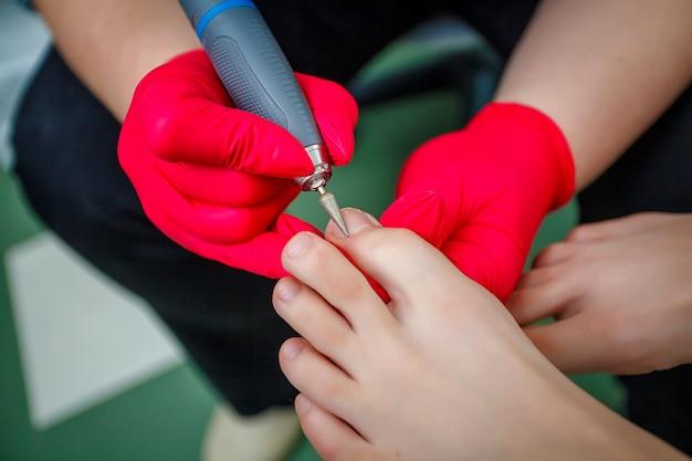 Fußarzt, der zehennagelpilz behandelt. podologische behandlung. Premium Fotos